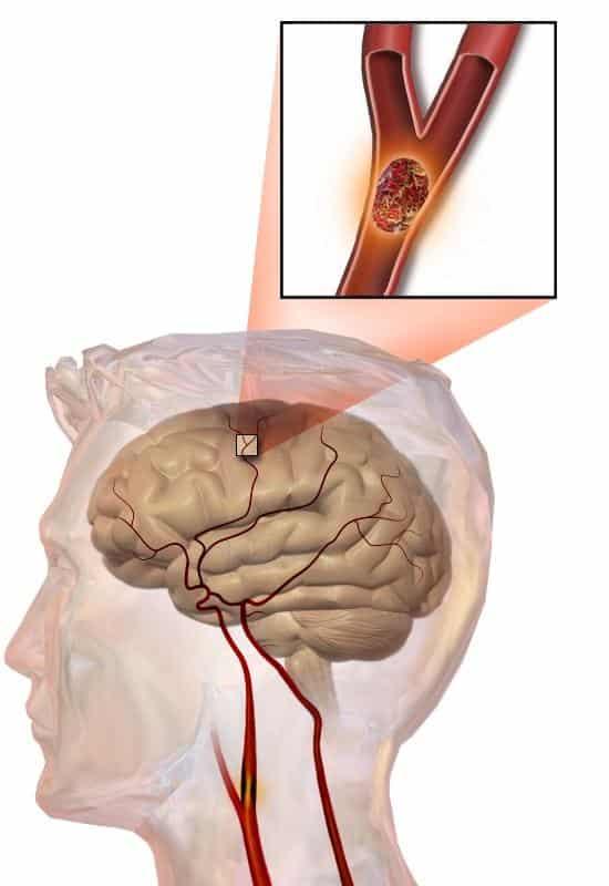 УЗИ сонной артерии в оценке риска развития инсульта
