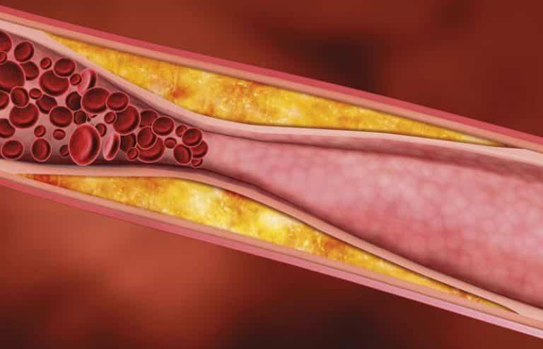 Исследование брахиоцефальных артерий методом дуплексного сканирования