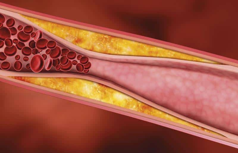 Ультразвуковое дуплексное сканирование брахиоцефальных артерий назначение процедура и расшифровка